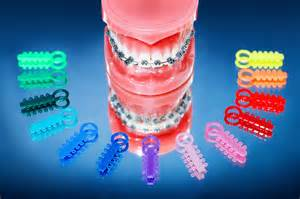 colorful braces vancouver island orthodontic specialists types of braces