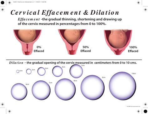 dilation effacement and station diagrams cervical dilation chart pic diagram of dilation and