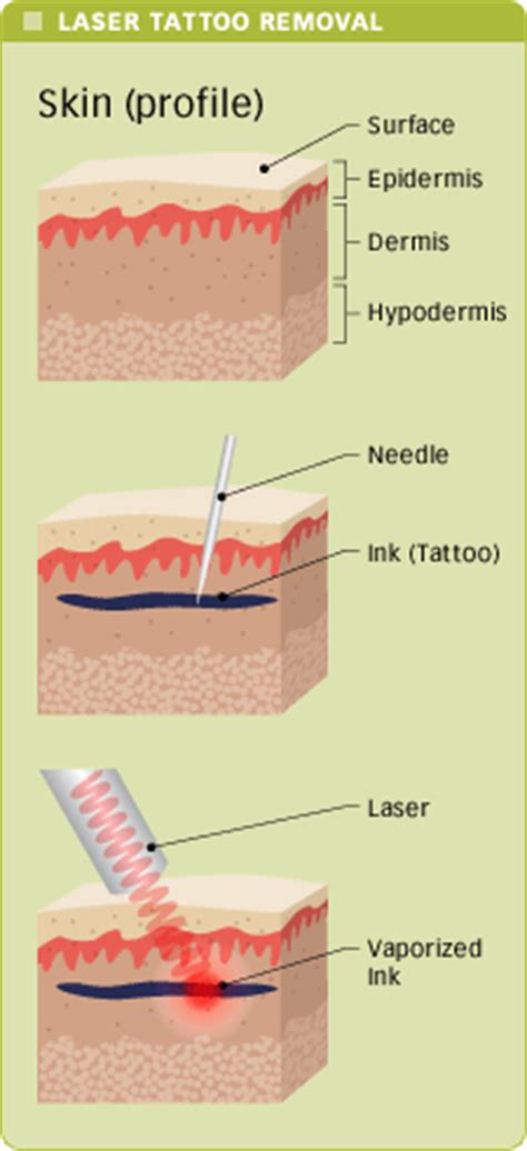 how a tattoo removal process works affordable tattoo