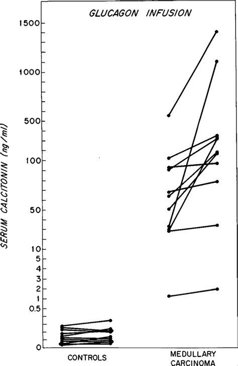 Serum Glucogen immunoassay of human calcitonin clinical measurement relation to serum calcium and studies in