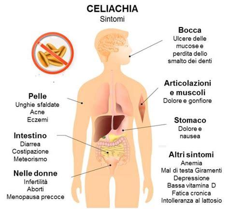 allergia alimentare sintomi allergie e intolleranze alimentari