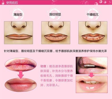 Masker Bibir Lip Mask Vitamin Bibir Lip Gold Collagen skin care collagen lip mask pads membrane moisture