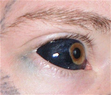 tattoo sclera scleral tattoo with saline inflation done using food color