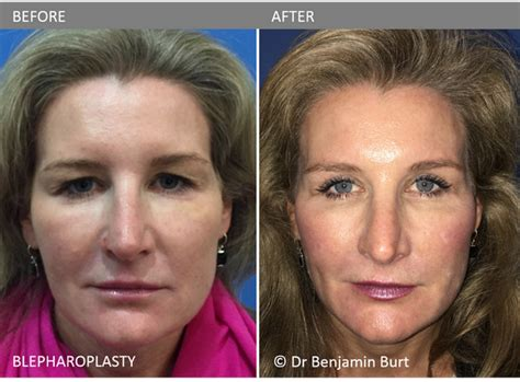 photo gallery before and after cosmetic surgeon in the blepharoplasty quot eye lid lift quot before after cosmetic