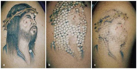 nashville tattoo removal removal alabama removal