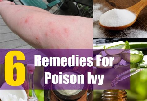 Home Remedies For Poison Oak by 6 Home Remedies For Poison Treatments Cure