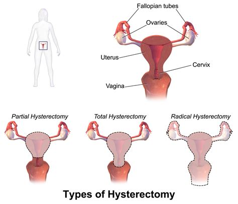 pelvic rest after c section hysterectomy