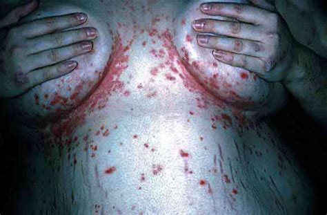 fungal infection the breast pictures