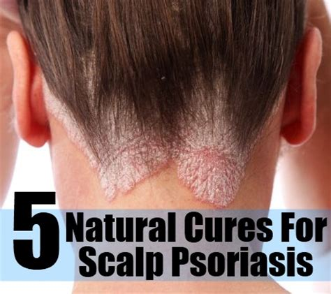 Best Hairstyles For Scalp Psoriasis | best hairstyles for scalp psoriasis psoriasis hair