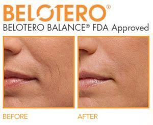 belotero balance dermal filler dermal filler provides 1000 images about belotero on pinterest dermal fillers