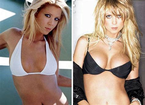 best fake boobs celebs with the worst fake breasts before and after 14