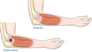 Can achilles tendonitis cause knee pain doctor insights on healthtap