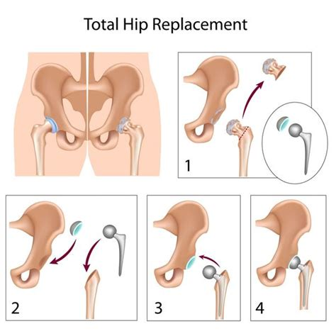 find a physician superpath hip replacement dr niraj vora total hip replacement exercise guidelines