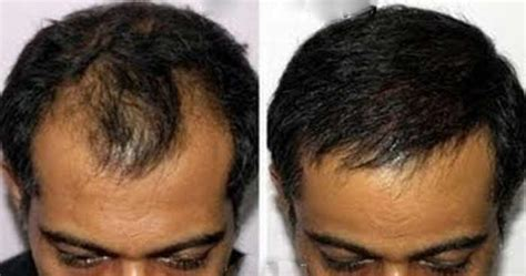 does hairline take longer to grow in after chemo biotin hair growth does biotin help work for hair growth