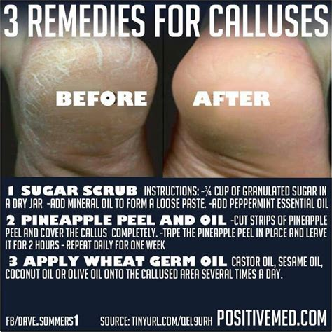 how to naturally remove the calluses on