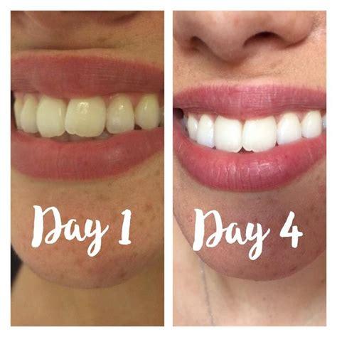 charcoal teeth whitening ideas  pinterest