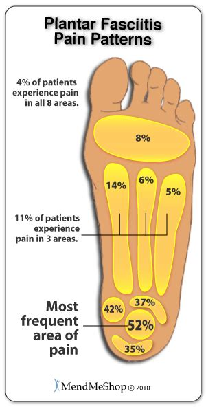 Planters Fasciitis Symptoms by Mendmeshop Symptoms Of Plantar Fasciitis
