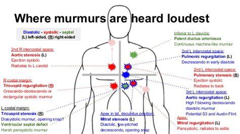 S4 Gaza Murmer 1 sounds valves and jvp