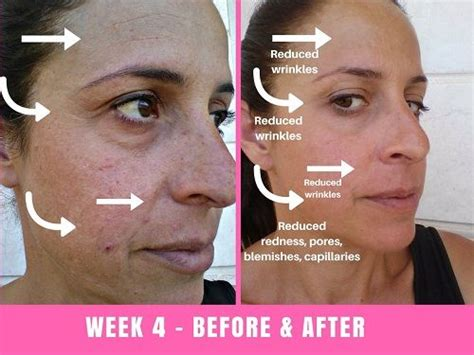 what does light therapy do for your skin we tried the project e led mask for 30 days