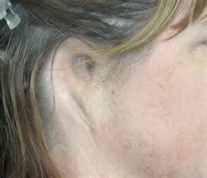 microtia prosthetic ear ear prosthesis artificial