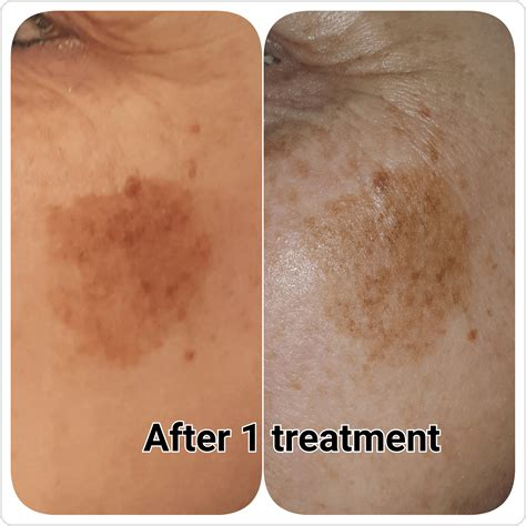 tattoo removal gloucester gallery c h laser treatments tattoo removal gloucester