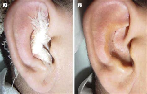 hematoma after c section auricular seroma cerebrovascular disease jama