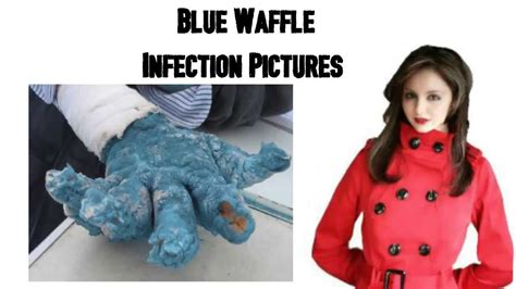Blue Waffles Pictures