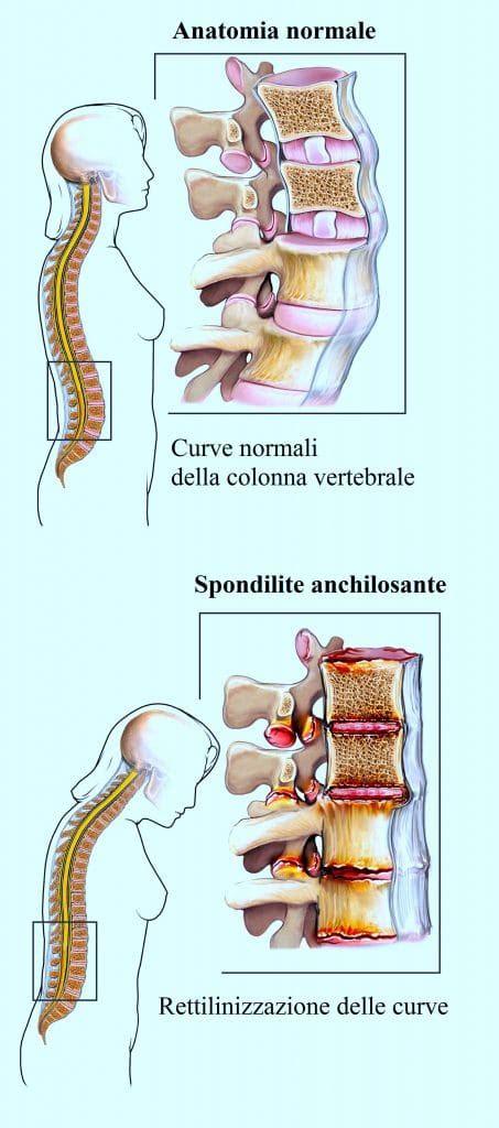 dolore alla gabbia toracica schiena dolore alla spalla infiammazione o degenerazione della