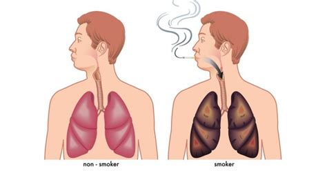 Detoxing The Of Nicotine by Attention Smokers These Foods Will Flush Out Nicotine