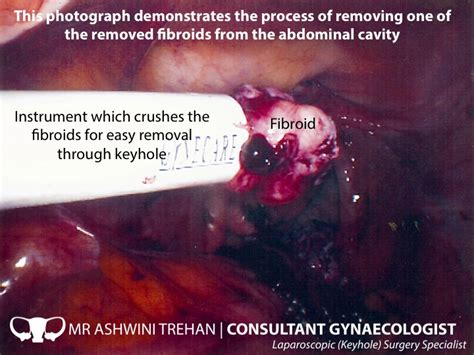 mr ashwini trehan consultant gynaecologist fibroid treatment and keyhole myomectomy specialist
