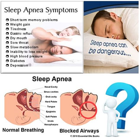 How Sleep Apnea Can Hurt A Relationship by Do I Ms Quiz
