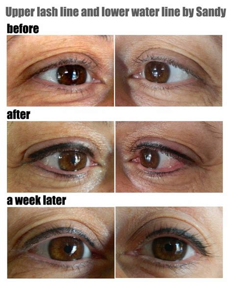 eyeliner tattoo after effects upper lash line and lower waterline semi permanent