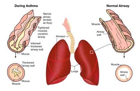 salt l for copd grandma s homemade remedy for asthma bronchitis