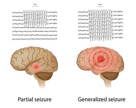 focal motor seizure symptoms malignant migrating partial seizures of infancy genetics