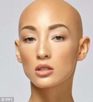 Is Bald She by Antm Contestant With Alopecia Feels Free Without Wig