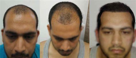 best hair transplant doctors in america best hair transplant in delhi noida meerut moradabad