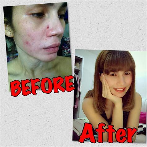 faceblogisra jangan mengata skincare nur sajat nur sajat
