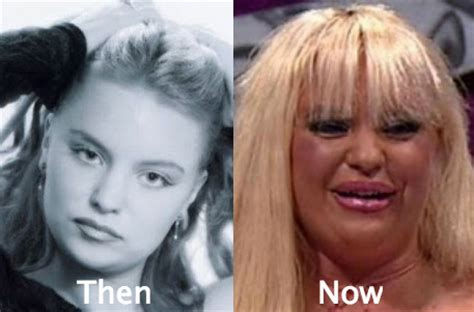 plastic surgery gone wrong 53 celebrity plastic surgery gone wrong before and after