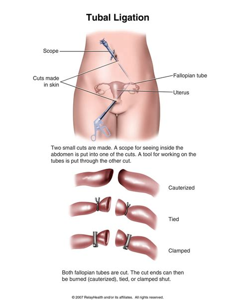 c section tubal ligation tubal ligation causes symptoms treatment tubal ligation