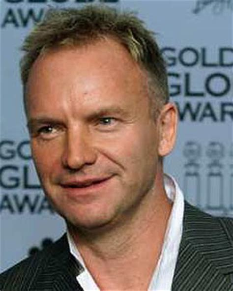 has sting had a hair transplant how may hair grafts do you think i may need forum by