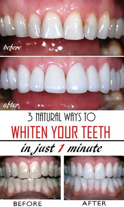 7 Reasons To Get Your Teeth Whitening Procedure Done By A Pro by Top 3 Ways To Whiten Teeth At Home Fast Ben
