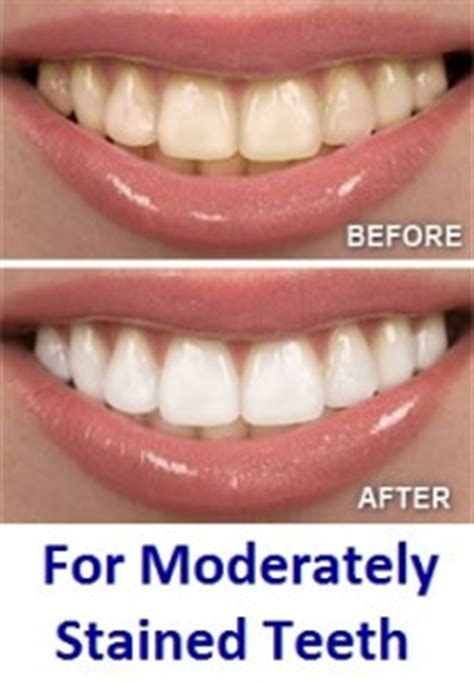 best whitestrips best teeth whitening strips that really work must read