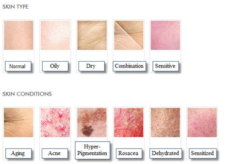 skin types types of skin conditions pictures photos