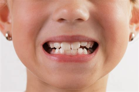 baby teeth baby teeth wait for them to fall out naturally or get them pulled