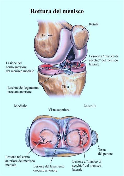 dolore al ginocchio interno dolore al ginocchio gonfiore e infiammazione dietro all