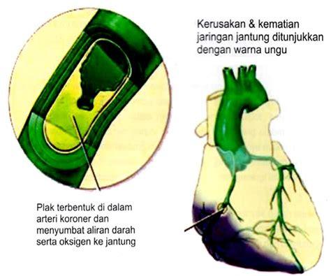 Lu Jantung jenis jenis penyakit dalam penyakit dan gambar jantung