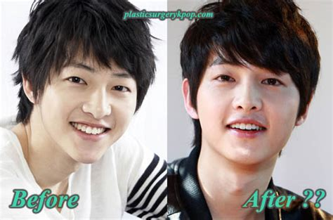 lee seung gi plastic surgery song joong ki plastic surgery pictures before and after rumor