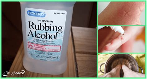 does alcohol kill bed bug eggs rubbing alcohol kill bed bugs 28 images how to get rid