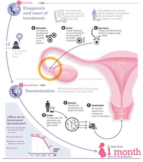 artificial insemination what is artificial insemination