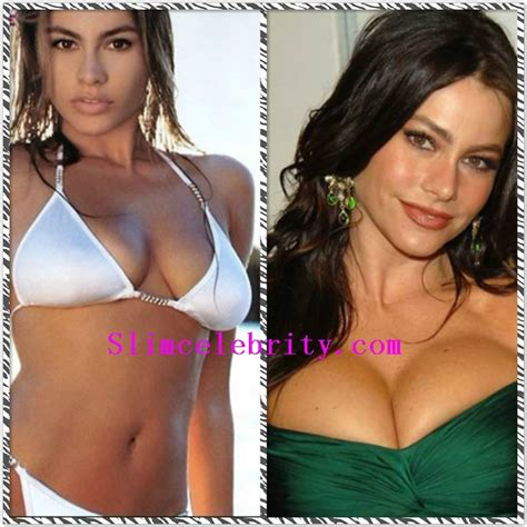 375 best images about celebrity plastic surgery on pinterest 89 best celebrity plastic surgery before and after photos